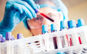 Testing blood samples for pancreatic cancer biomarkers.